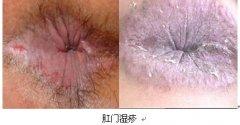 <b>肛门湿疹的症状?肛门湿疹是什么原因引起?</b>