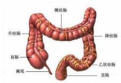 <b>直肠炎的分类有哪些</b>