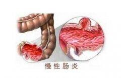 <b>慢性肠炎是什么,看医师为您解析</b>