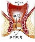 <b>女性肛裂形成的主要原因都有哪些</b>