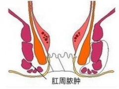 <b>肛周脓肿的症及治疗方法</b>